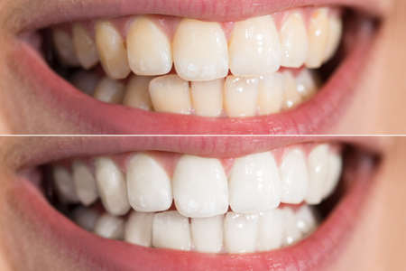 Close-up Detail Of Person Teeth Showing Before And After Whitening Stockfoto