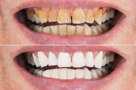화이트닝 전후의 남자 치아의 근접 촬영 세부 사항