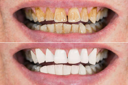 Close-up Detail Of Man Teeth Before And After Whitening Stockfoto