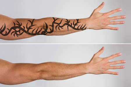 Attractive Mans Hand Before And After Laser Tattoo Removal Treatment