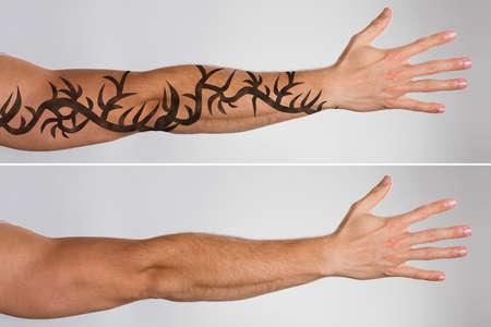 La mano del hombre atractivo Antes y después del tratamiento de eliminación de tatuajes con láser Foto de archivo