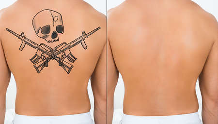 shirtless: Person Showing Before And After Laser Tattoo Removal Treatment On Back Stock Photo