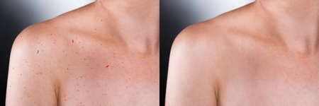 retouch: Close-up Of Before And After Result Of Skin Treatment On Grey Background