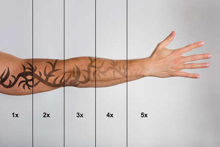 Laser Tattoo Removal On Mans Hand Against Grey Background Banque d'images