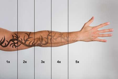 Rimozione del tatuaggio laser sulla mano dell'uomo contro sfondo grigio