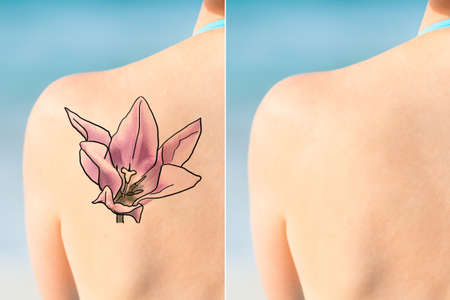 Person Showing Before And After Laser Tattoo Removal Treatment On Shoulder