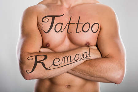 Tattoo Removal Text On Shirtless Mans Chest And On His Arm Against Grey Background