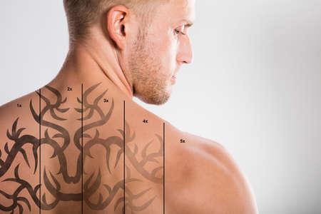 La eliminación de tatuajes con láser en la espalda del hombre descamisado contra fondo gris