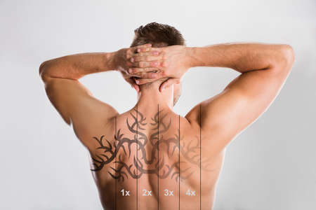 Laser Tattoo Removal On Shirtless Mans Back Against Grey Background