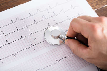 infirmary: High Angle View Of Person Hand Using Stethoscope On Cardiogram Chart On Wooden Desk Stock Photo