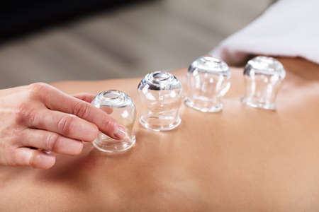 Therapist Placing Transparent Glass Cups On Persons Back In Spa Stock Photo