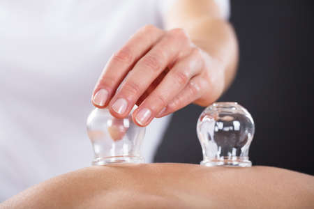 Close-up Of A Therapist Giving Cupping Treatment On Back