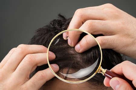 baldness: Primer plano, dermatólogo, comprobación, paciente, pelo, por, magnificar, vidrio Foto de archivo