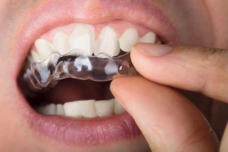 歯に透明なアライナを調整する人間の画像をトリミング