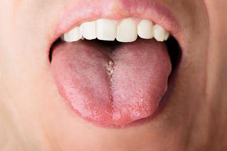 impure: Closeup photo of man showing his tongue