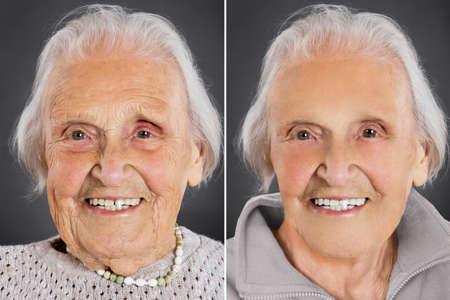 Donna anziana anti invecchiamento trattamento della pelle prima e dopo