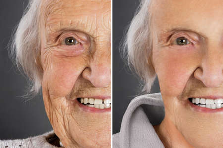 Senior vrouw anti-aging huid behandeling voor en na Stockfoto - 85090813