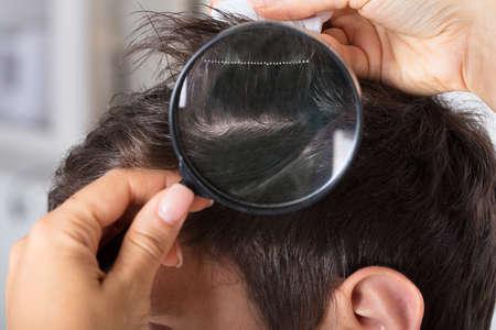 Primer plano, de, un, dermatólogo, mano, verificar, paciente, pelo, con, lupa Foto de archivo - 87895722