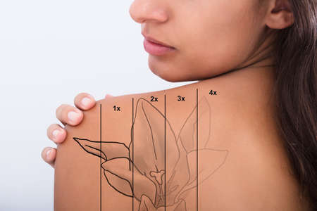 Rimozione del tatuaggio laser sulla spalla della donna contro sfondo bianco
