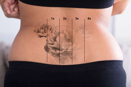 Achteraanzicht van Laser Tattoo verwijdering op de heup van de vrouw