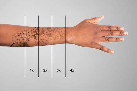 Eliminación de tatuajes con láser en la mano de la mujer contra el fondo gris Foto de archivo