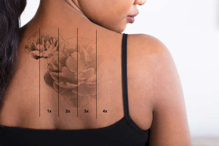 Close-up de uma remoção de tatuagem a laser nas costas da mulher Foto de archivo