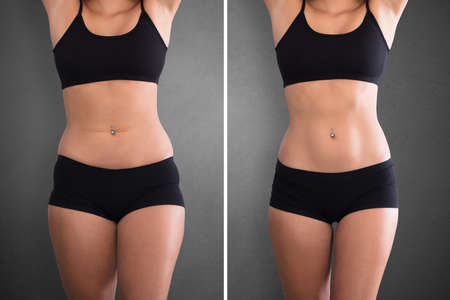 Close-up Of Fat And Slim Woman Before And After Diet Stok Fotoğraf - 92339190