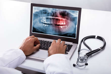 Close-up Of A Dentists Hand Typing On Laptop With Dental X-ray On Screen Stock fotó