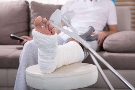 Junger Mann mit gebrochenem Bein , das auf Sofa unter Verwendung des Fernbedienung sitzt Standard-Bild