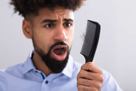 Young Man Holding Comb Looking At Hair Loss Banco de Imagens
