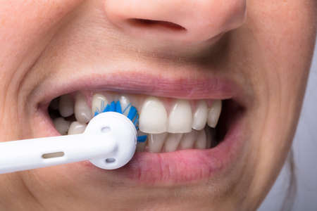 Close-up Of A Womans Teeth With Electrical Toothbrush