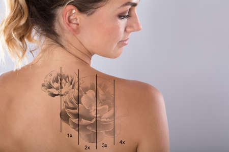 Laser Tattoo Removal On Woman's Shoulder Against Gray Background Banque d'images - 93507204