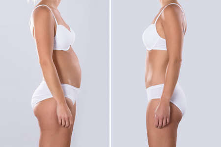 Vrouw vóór en na dieet. Lichaamsvormen zijn geretoucheerd