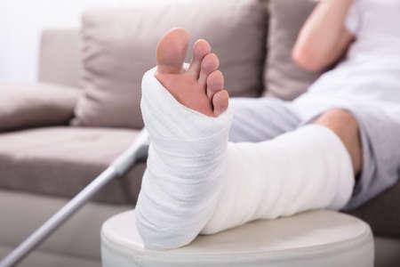 男の漆喰脚のクローズアップ写真 写真素材