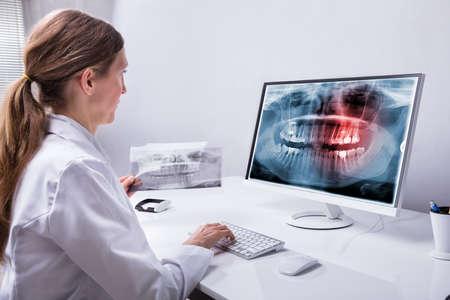 Dentista de sexo femenino maduro que mira la radiografía de los dientes en el equipo en la clínica Foto de archivo