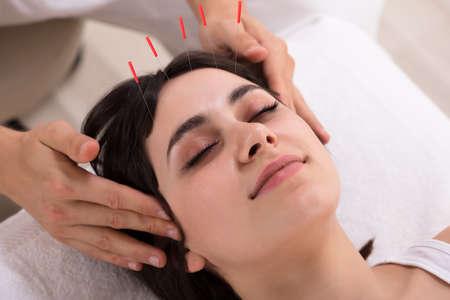 Entspannte junge Frau, die Akupunkturbehandlung im Schönheits-Spa erhält Standard-Bild