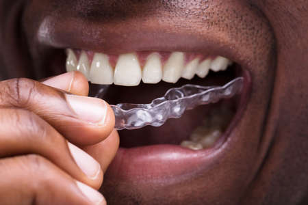 Close-up Of A Man Adjusting Transparent Aligners In His White Teeth Фото со стока