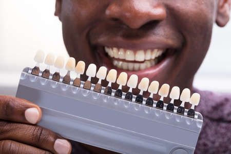 Close-up Of A Smiling Man Matching The Shades Of The Implant Teeth Stock Photo