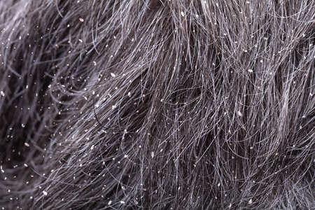 Full Frame Shot Of A Mans Hair With Dandruff Stock Photo