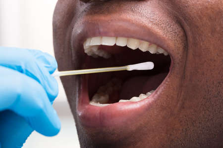 Close-up Of Dentist Wearing Blue Glove Cleaning Teeth With Cotton Buds