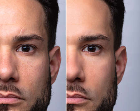 Man's Face Before And After Cosmetic Procedure On Grey Background Banque d'images