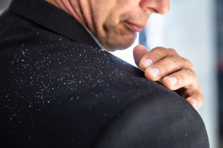 Close-up Of A Businessman's Hand Brushing Off Fallen Dandruff On Shoulder Stock Photo