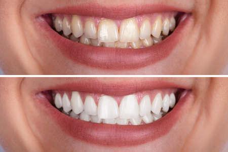 Close-up de los dientes de una mujer sonriente antes y después del blanqueamiento Foto de archivo