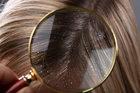 Close-up Of A Dandruff In Blonde Hair Seen Through Magnifying Glass
