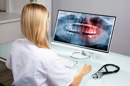 Female Dentist Examining Teeth X-ray On Computer Over Desk In Clinic