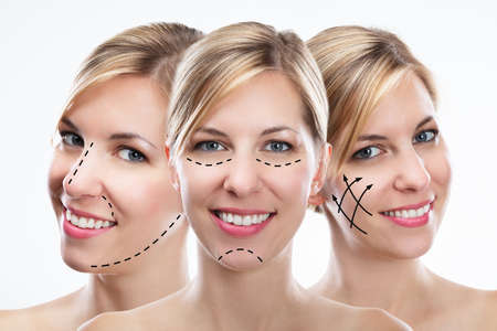 Multiple Exposure Of Happy Young Woman With Correction Lines On Her Face Archivio Fotografico - 109226837