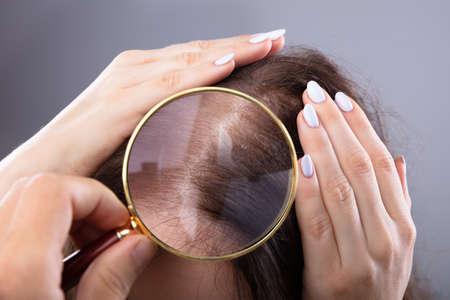 Die Hand eines Dermatologen untersucht das Haar einer Frau mit einer Lupe Standard-Bild