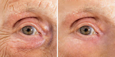Close-up Of A Senior Womans Eye With And Without Wrinkles After Cosmetic Treatment Фото со стока