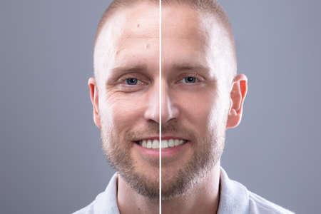 Retrato de la cara de un hombre sonriente antes y después del procedimiento cosmético sobre fondo gris