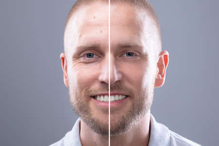 Ritratto del volto di un uomo sorridente prima e dopo la procedura cosmetica su sfondo grigio
